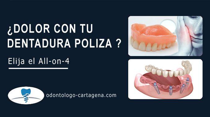 Dolor con tu dentadura postiza